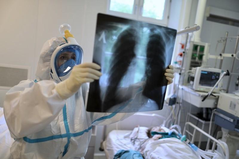 Более 517 тысяч новых случаев коронавируса зафиксировали в мире за сутки
