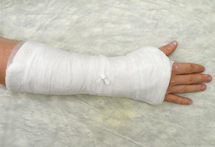 Что делать при переломах: советы травматолога