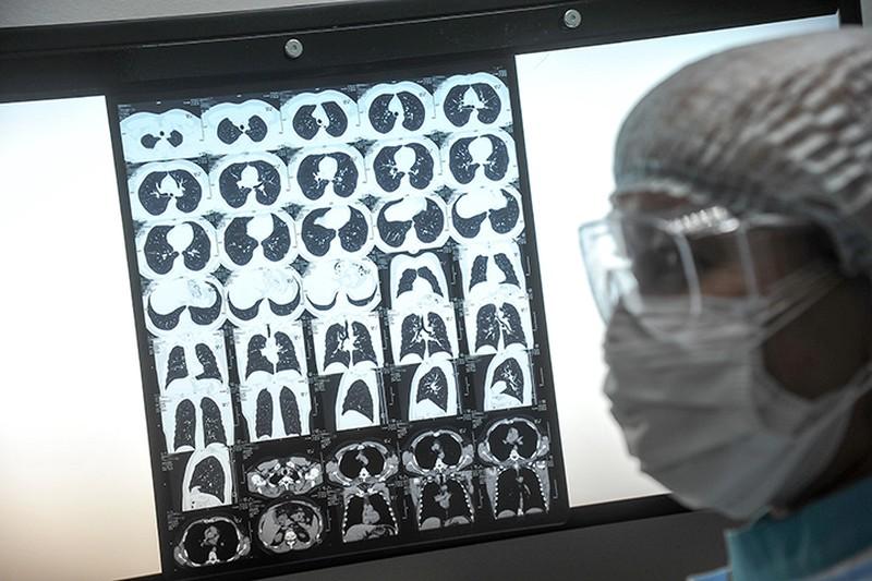 В Москве за сутки выявили еще 1284 случая коронавируса